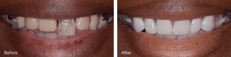 Full Mouth Restoration Before and After Image of A Real Patient