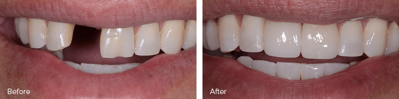 Full Mouth Restoration Before and After Image of A Real Patient of Dr. Merrill