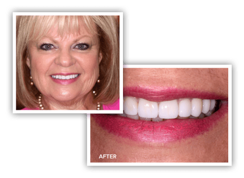 Photos of Kathy after her veneers treatment