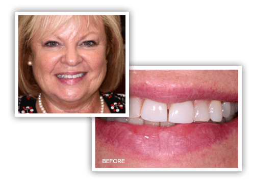 Photos of Kathy before her veneers treatment