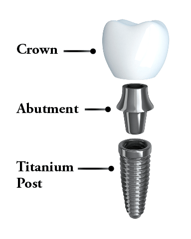 Dental Implants Huntersville, NC - Anatomy of a dental implant - post, abutment, and crown.