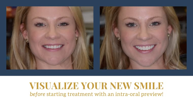 "Before and after intra-oral preview patient photos with text ""Visualize your new smile before starting treatment with an intra-oral preview!"