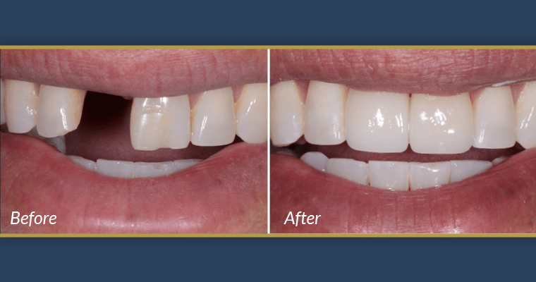 Before and after photos of teeth showing that dental implants are not painful.