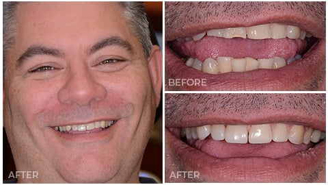 James, who's an actual patient of NorthStar Dentistry for Adults and is now in our Smile Gallery