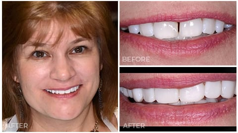 Karen, who's an actual patient of NorthStar Dentistry for Adults and is now in our Smile Gallery