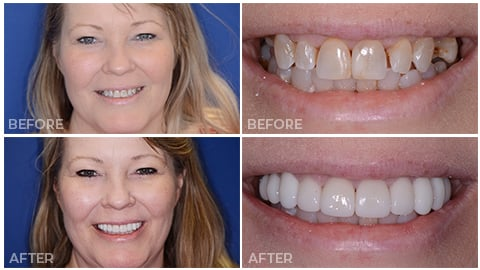Kim, who receive porcelain veneers from NorthStar Dentistry for Adults and is now in our Smile Gallery