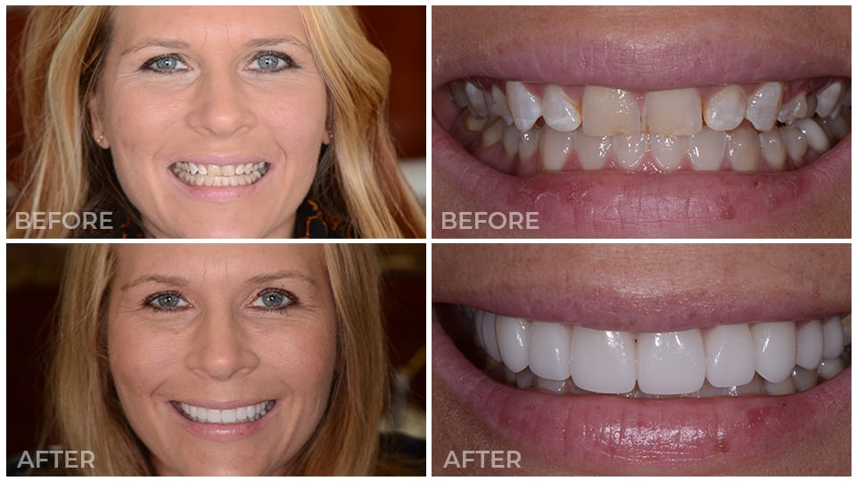 Actual patient's smile before and after porcelain veneers