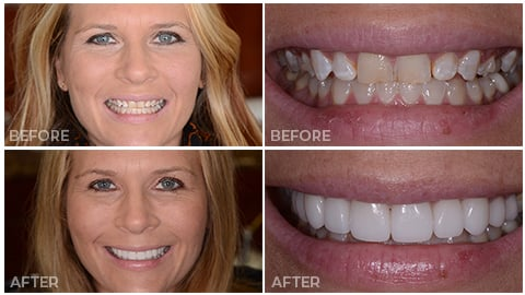 Laura, who receive porcelain veneers from NorthStar Dentistry for Adults and is now in our Smile Gallery