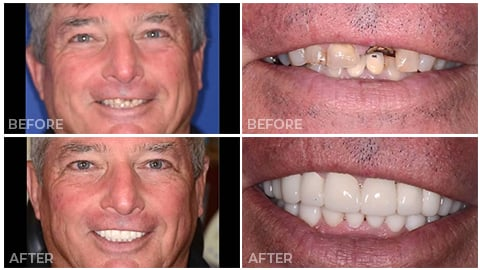 An actual patient of NorthStar Dentistry for Adults and is now in our Smile Gallery
