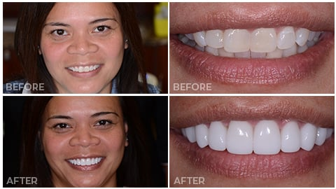 Pristine, who receive porcelain veneers from NorthStar Dentistry for Adults and is now in our Smile Gallery