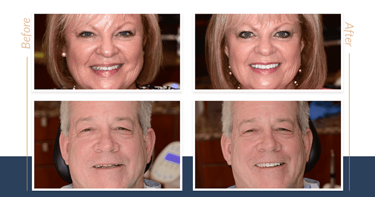 Before and after cosmetic dentistry photos of two real patients