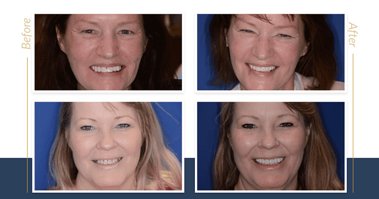 Before and after cosmetic dentistry photos of two real patients who improved their smiles