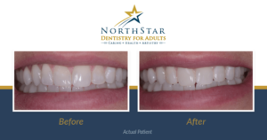 Patient smile before and after dental bonding treatment.