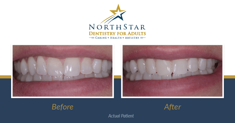Dental Bonding Before and After (Real Patient's Story!)