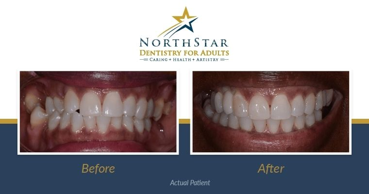 Invisalign Before and After: Kim's Journey With Clear Aligners